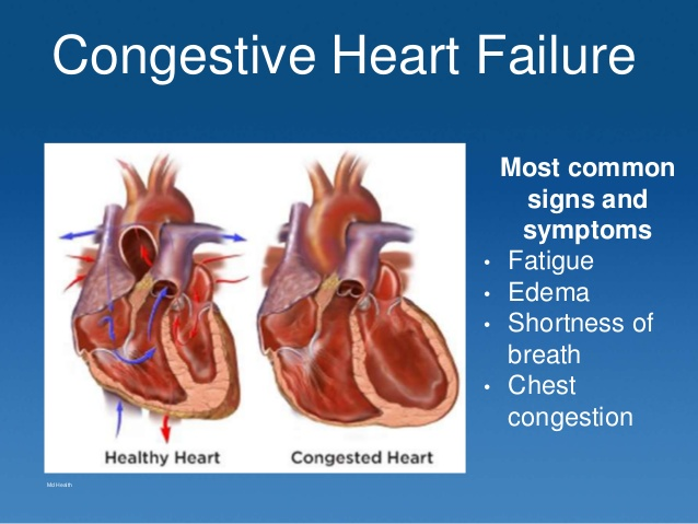 congestive-heart-failure-case-study-2-638