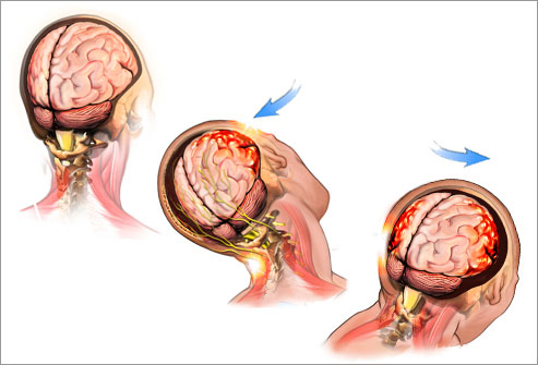 getty_rm_photo_of_illustration_of_a_concussion