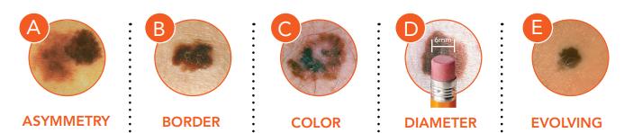 a - Melanoma image