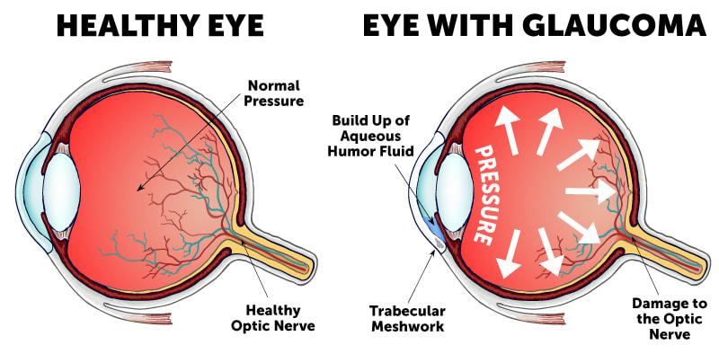 GlaucomaEyeDiagram-min