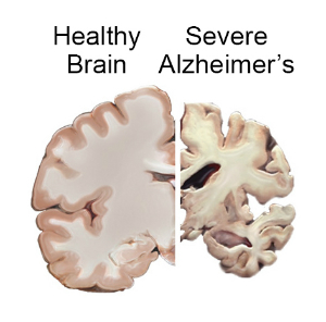 Healthy Brain vs Severe Alzheimers