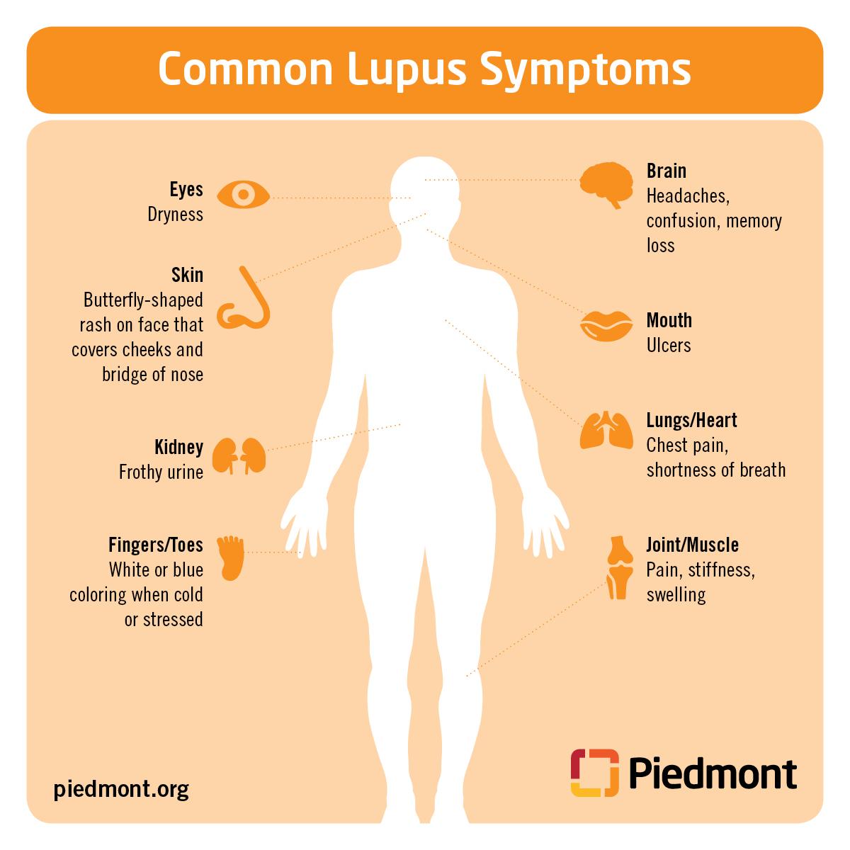 Lupus Diagram